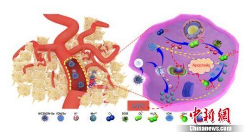 科研新进展:不含化疗药物诊疗剂亦可诱导肿瘤细胞凋亡