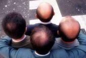 我国每6人中有1人脱发,植发行业持续火爆,轻松月入千万